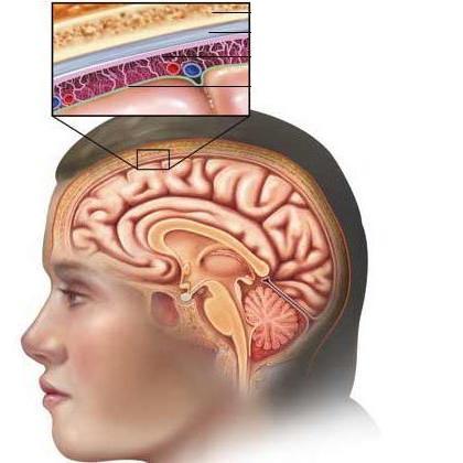 діагностика менінгіту