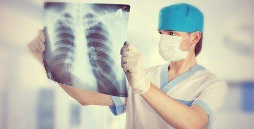 Діагностика набряку легенів