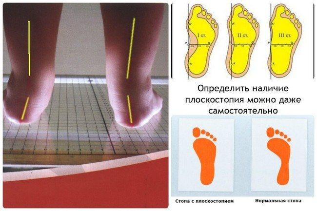 Діагностика плоскостопості у дітей