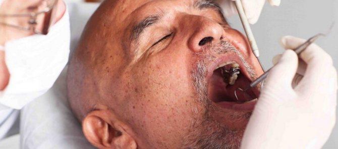 Діагностика раку порожнини рота