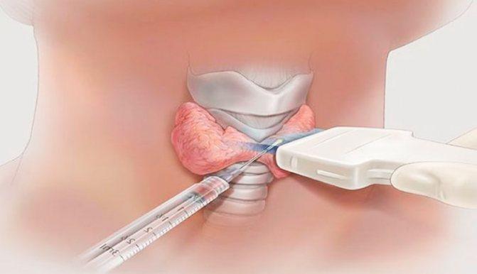 діагностика раку щитовидної залози, біопсія