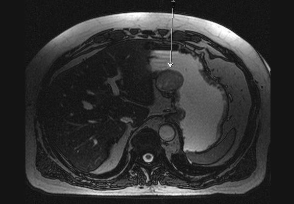 Діагностика раку шлунка за допомогою МРТ