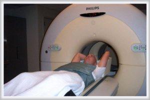 діагностика раку