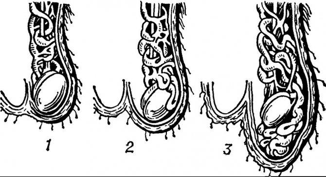 діагностика варікоцеое