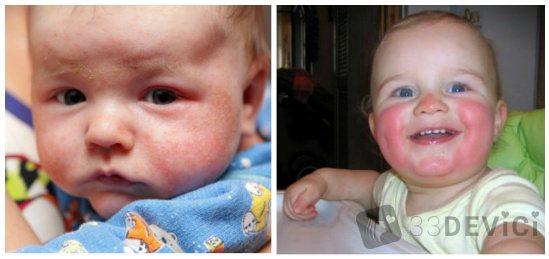 діатез на щоках у дитини фото
