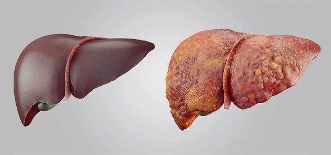 Дієта при фіброзі печінки 2 ступеня