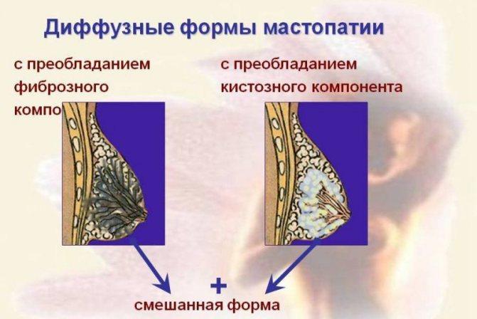 дифузно форма