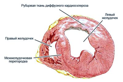 дифузно кардіосклероз