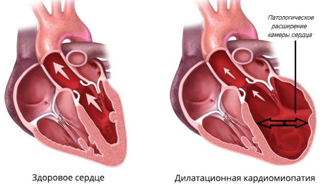 ділатаційна кардіоміопатія