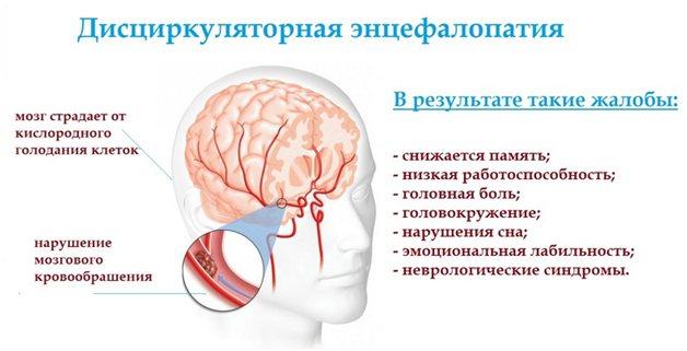 Дисциркуляторна енцефалопатія