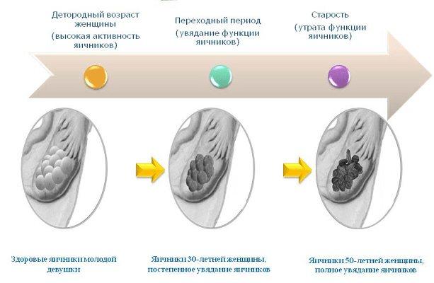 Дисфункція яєчників: симптоми і методи лікування