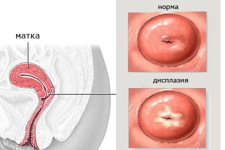 дісплазія Шийки матки