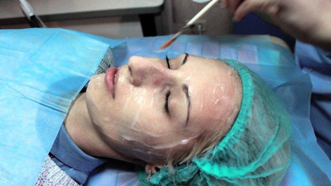 Для позбавлення від тришей на обличчі рекомендують робити маску з використанням порошку полісорб