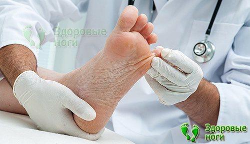 Для лікування ніг при діабеті обов'язково зверніться до лікаря
