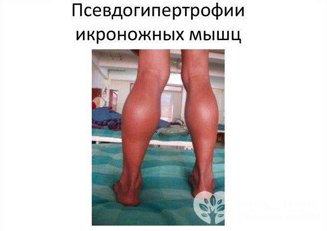 Для міопатії Дюшенна характерна псевдогіпертрофія литкових м'язів, ця форма також називається псевдогіпертрофічна
