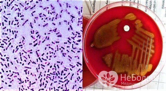 Для Streptococcus pneumoniae характерно розвиток типового синдрому пневмонії
