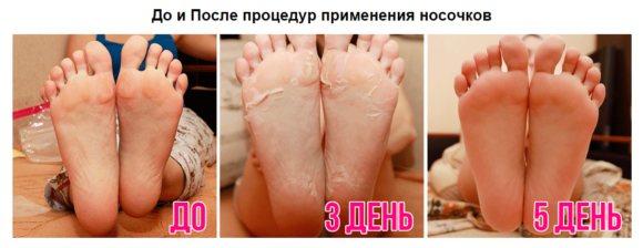 До і після застосування шкарпеток
