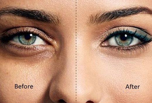 до и после! застосування осветляющего крему