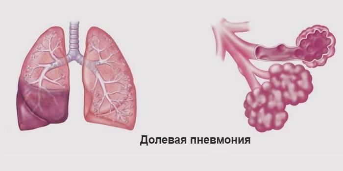 Пайова запалення легенів