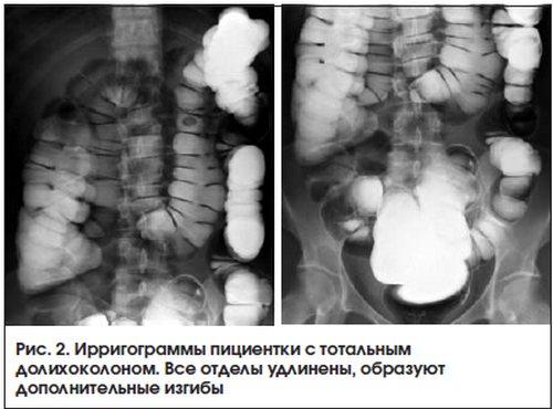 Доліхоколон кишечника: причини, симптоми і лікування