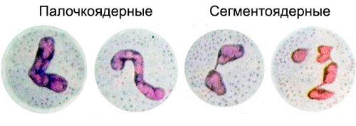 два види нейтрофілів: паличкоядерні і сегментоядерні
