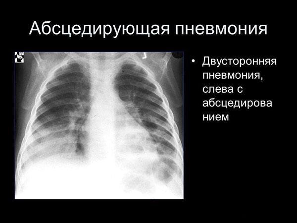 Двостороння пневмонія на рентгенівському знімку