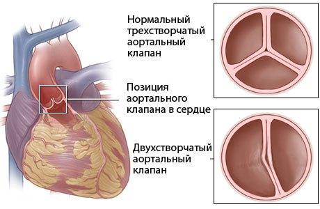 Двостулковий аортальний клапан