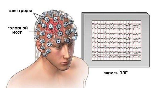ЕЕГ головного мозку