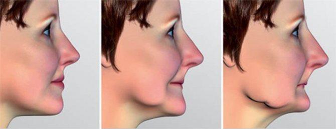 Ефект «старечого особи» такоже может вінікнуті и при частковій втраті зубів, особливо жувальної групи