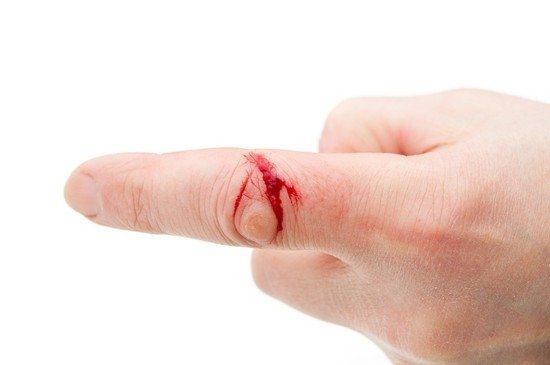 Ефективний Аскорутин і при кровотечах