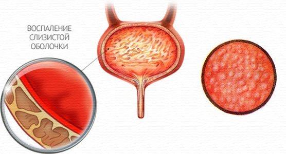 Ефективні таблетки для лікування циститу у жінок. Назви, ціни, як приймати