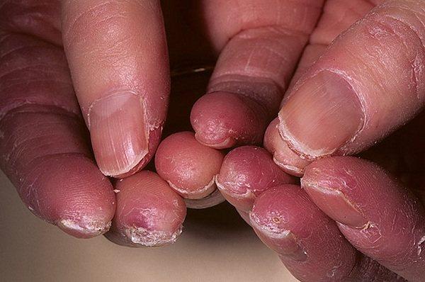 Екзема на пальцях