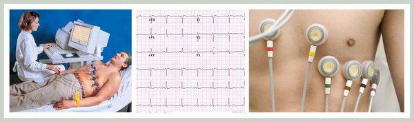Електроенцефалографія (ЕКГ)