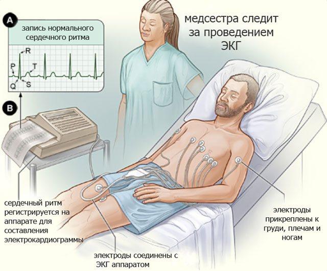 електрокардіографія