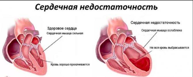 Енап при серцевій недостатності