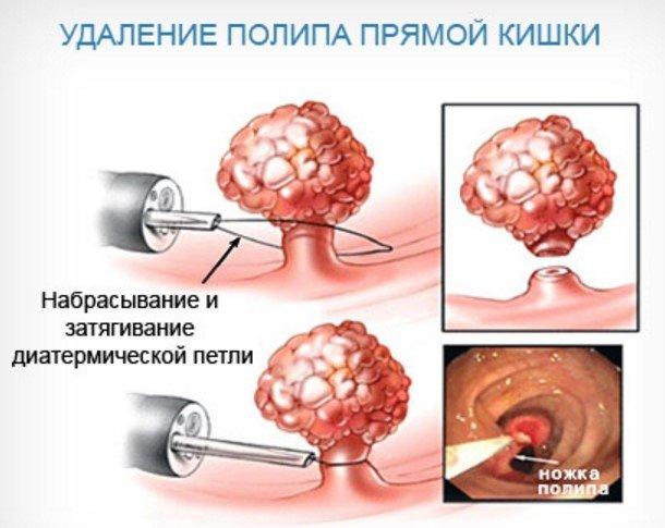 ендоскопічна поліпектомія