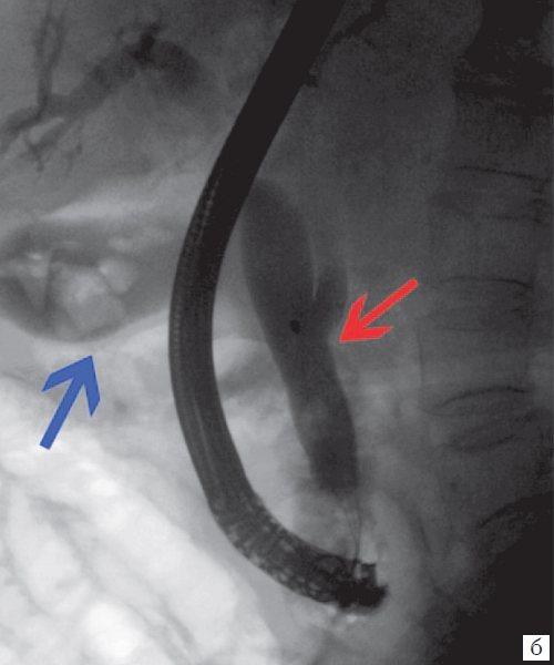 Ендоскопічна ретроградна холангіопанкреатографія - конкременти в жовчному міхурі (синя стрілка), в холедохе (червона стрілка)