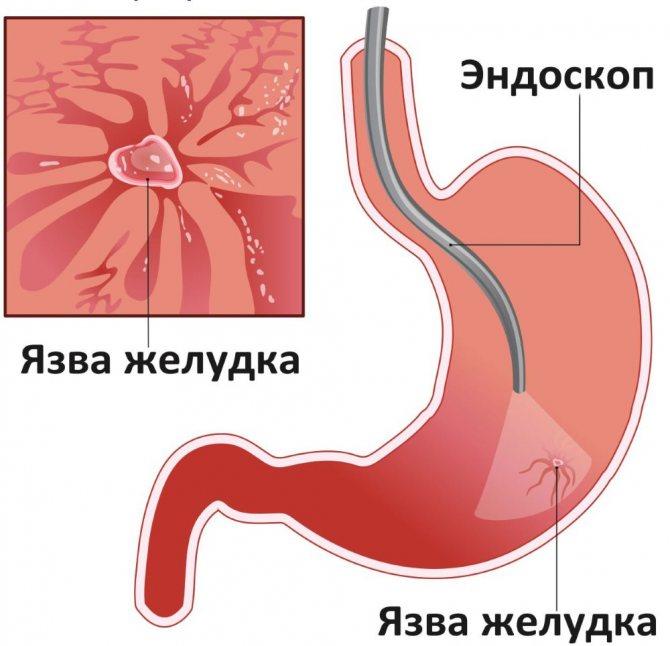 ендоскопічне дослідження шлунка