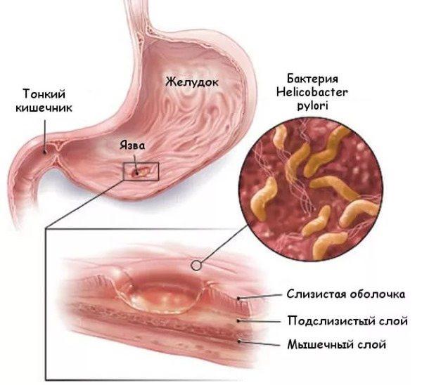 Ентероколіт кишечника. Симптоми і лікування у дорослих народними засобами, препарати, дієта. Гострий, хронічний, бактеріальний, інфекційний, неінфекційний, вірусний, псевдомембранозний