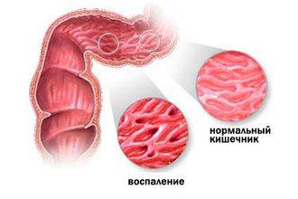 ентероколіт кишечника