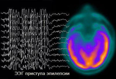 епілепсія причини виникнення