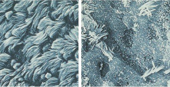 епітелій, пошкоджений микоплазмами