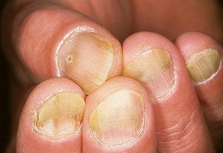 еритематоз-плямиста форма псоріазу