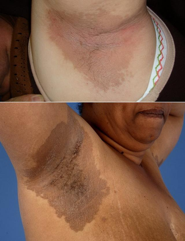 Еритразма поверхневих шарів шкіри під пахвами