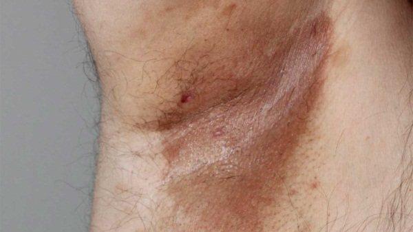 Еритразма у жінок, чоловіків. Фото пахова, на сідницях, під пахвами, лікування