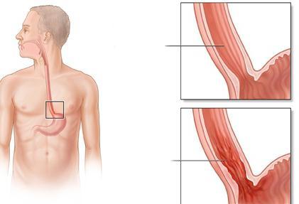 ерозивний езофагіт симптоми