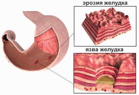 ерозія шлунка