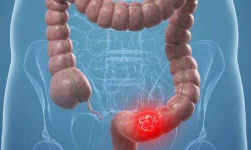 Якщо не звертається за помощью во время то можливий розвиток ускладнень у виде непрохідності кишечника