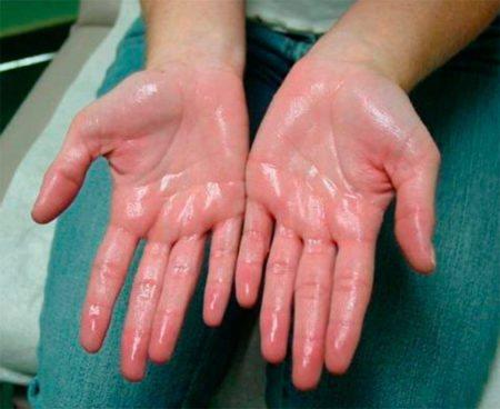 Якщо сильно пітніють руки