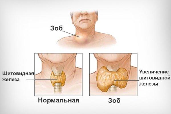 еутіероз щитовидної залози симптоми і лікування